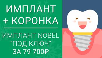 Имплант Nobel + коронка из диоксида циркония = 79 700 руб. за всё! Работа «под ключ»!