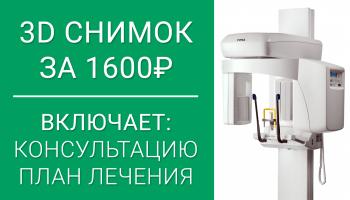 КТ (3D снимок) + консультация + план лечения = 1600 р.